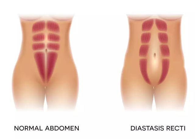 """乳房下垂、大肚子,还漏尿,这些产后问题不重视,小心""""坑""""一生"""