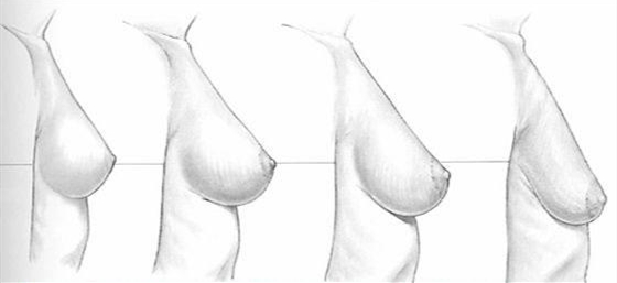 关爱乳房,10个你意想不到的冷知识