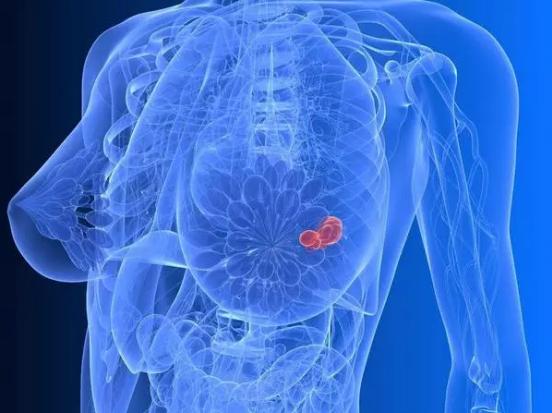 乳腺癌是怎么来的?你知道吗?只需四步!