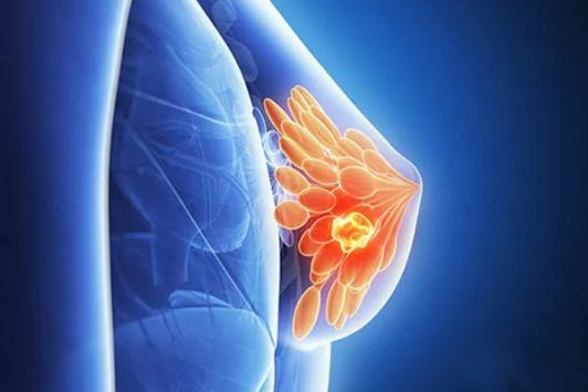 乳腺增生会不会癌变的6大误区