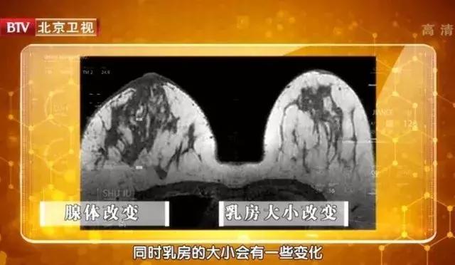 """胸部出现""""小酒窝"""",当心是乳腺肿瘤!"""