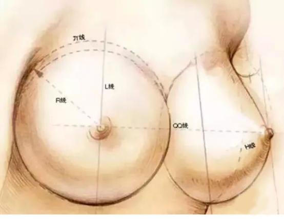 隆胸就要越大越好?注意四大隆胸误区!