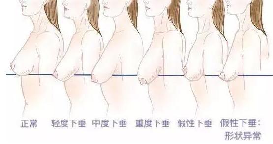 年纪轻轻先胸部下垂?90%的女性不知道的胸部真相大揭秘!