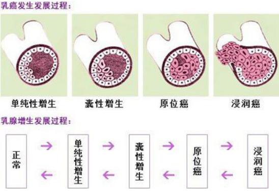 乳腺增生的早期症状,3个乳房症状要警惕!