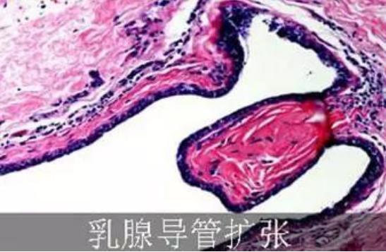 乳癌的乳腺导管扩张是怎么回事?你了解过吗?