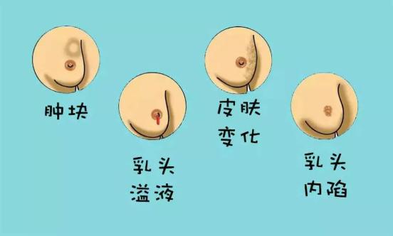 乳腺有小硬块不痛不动才可怕,别再忽视了!