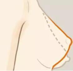 预防乳房下垂,坚挺你的地心引力