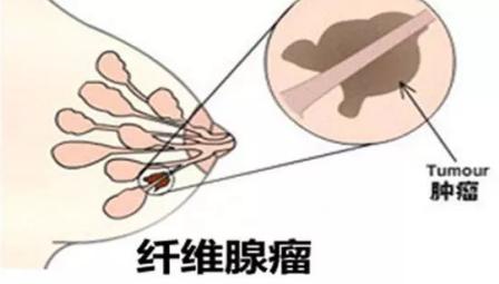 第一次发现癌症离自己这么近,得了乳腺纤维瘤你该怎么办?