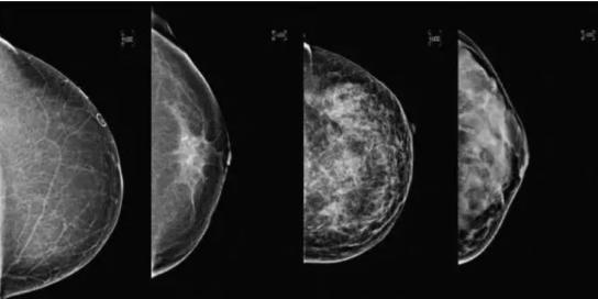 精准检测乳腺癌,3D比2D更优秀