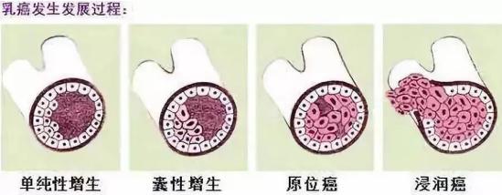 """胸部出现""""小酒窝"""",当心是乳腺癌,除此之外还有这几种症状!"""