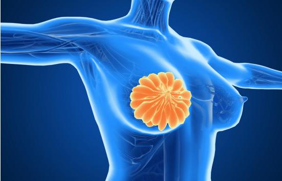 乳腺结节,80%是良性,那剩下的20%怎么办?