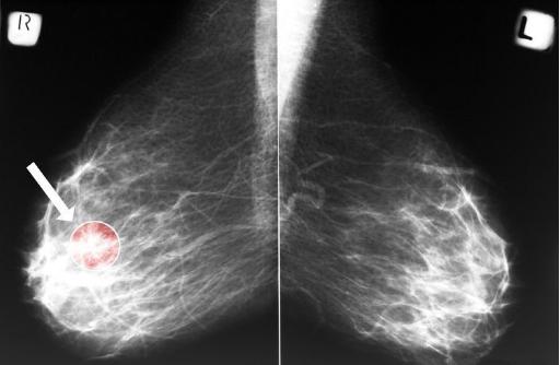 """这4种""""长相""""的乳腺结节,警惕是恶性肿瘤!"""